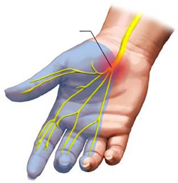 Carpal-Tunnel-Syndrome-distribution3